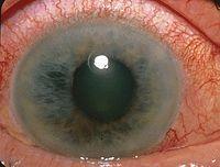 Closure-glaucoma.jpg