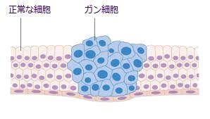 ガン細胞.png
