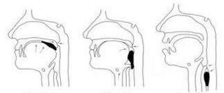 咽頭障害.jpg