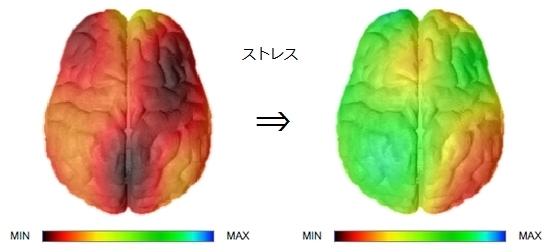 脳の活性化.jpg
