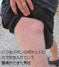 cellphone_tumor字.jpg